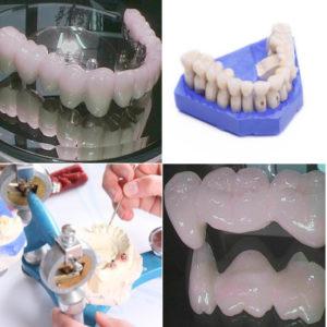 Unser praxiseigenes Dentallabor – Zahntechnik und Zahnmedizin unter einem Dach