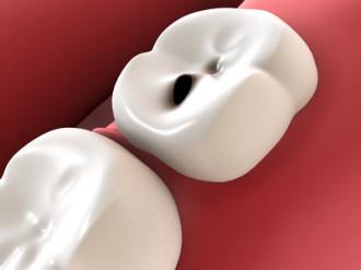 Zahnkaries, Darstellung,