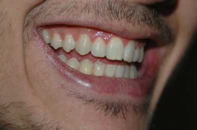 Gesund, Mund, Parodontologie
