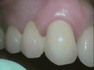 Zahnfleisch, wunderschön, Zähne,Cerec-Brücke