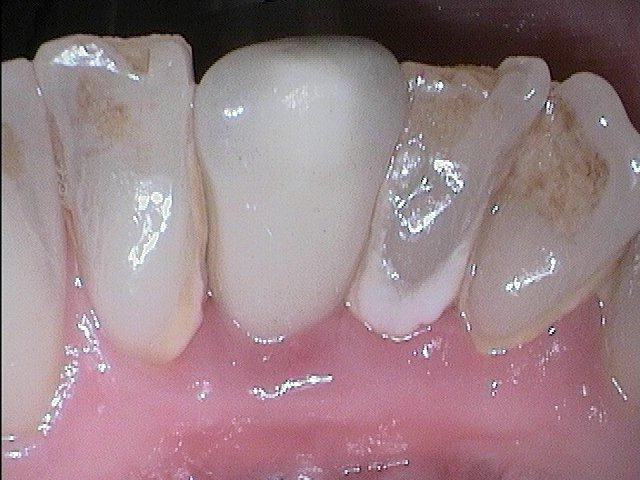 Vollkeramikkrone ohne Zahnbelag